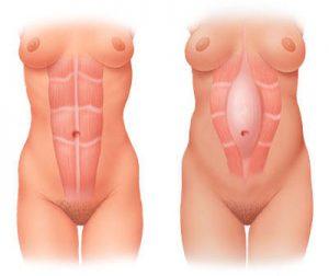 Diastasis-Recti-Example
